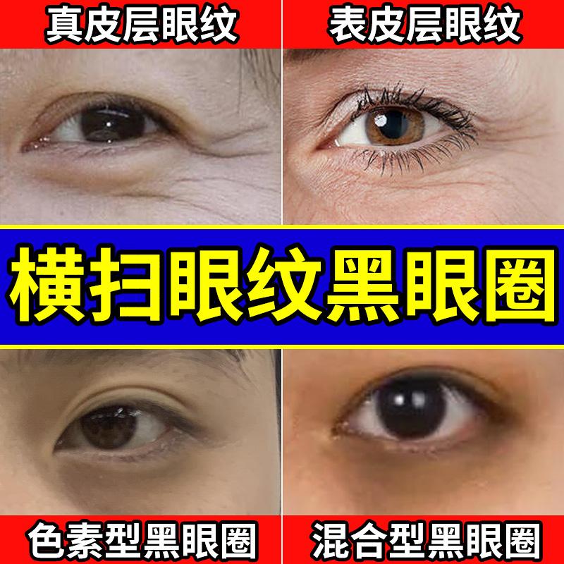 眼膜贴去祛眼袋消黑眼圈淡化细纹提拉紧致克星男士眼贴膜神器正品